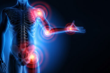 Trigger point: il dolore fa da spia per muscoli e articolazioni