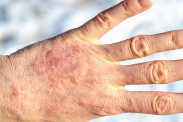 Napoli, 150 mila pazienti affetti da psoriasi.