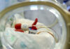 Rifiuta la Chemio per far nascere sano il proprio figlio. L'equipe di oncologia del Cardarelli la salva