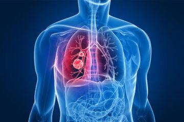 Tumore al polmone, nuovo protocollo di cura presentato a Napoli. Raddoppiata la sopravvivenza.