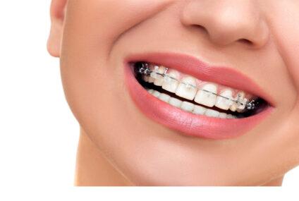 L'ortodonzia tra eccesso e difetto