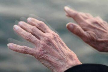 Fari sul Parkinson a Messina
