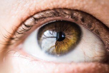Sinechia oculare anteriore e posteriore: cause, evoluzione, diagnosi, terapie