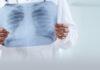 Rieti, indagini radiologiche a domicilio