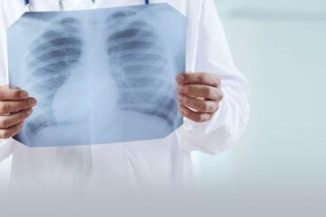 Treviso: da febbraio le radiografie si fanno anche a domicilio