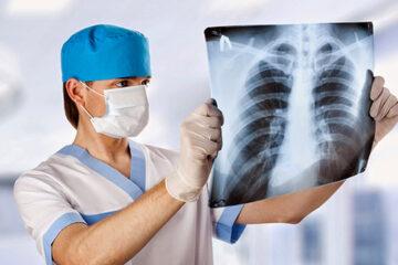 Il COVID-19 e i reparti di radiologia
