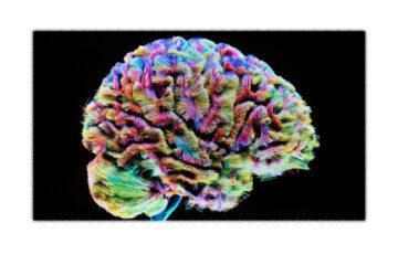 MyBrain è un progetto dove la bellezza del cervello diventa arte