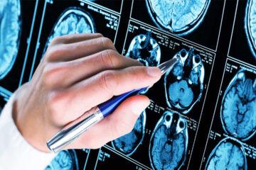 Epilessia e lockdown: l'indagine della Fondazione Lega Italiana contro l'epilessia, problemi per il 40% dei pazienti