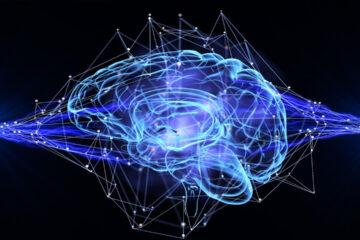 L' importanza  del  Neuroimaging in caso di Stroke