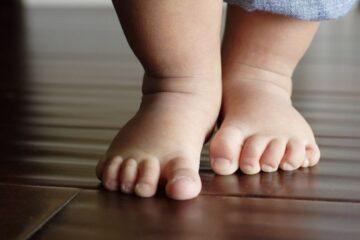 Chirurgia pediatrica dei piedi piatti: La novita' del copolimero riassoribibile plla