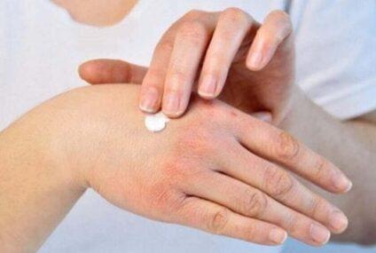 Dermatite atopica dell'adulto: il 26 settembre consulti dermatologici gratuiti a Napoli