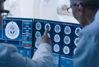 Dall'Intelligenza Artificiale un aiuto alla comprensione dello sviluppo dell'Alzheimer