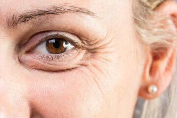 Il nuovo approccio per ringiovanire lo sguardo  Filler dedicati per ogni area e per ogni età