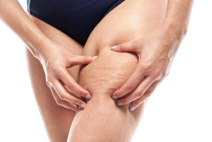 Cellulite novità: dagli Stati Uniti il trattamento che offre risultati che durano fino a 5 anni