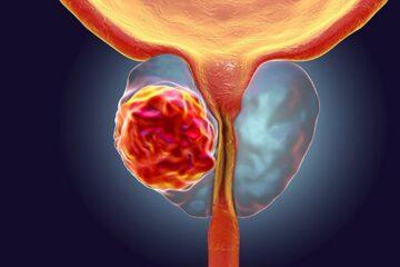Introdotta nell'Unità operativa di Urologia dell'Azienda Moscati la biopsia Fusion per la diagnosi del carcinoma della prostata