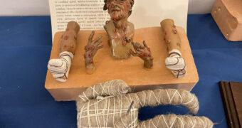 Epidemie e vaccini: La storia in una mostra del museo delle arti sanitarie a Matera nell'ex ospedale San Rocco dall'8 giugno al 5 settembre 2021
