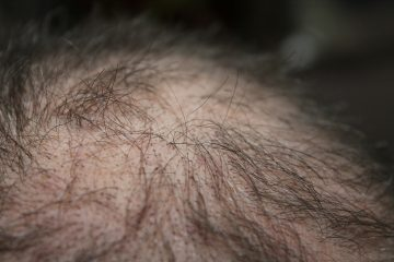Alopecia Areata: il 3 settembre a Napoli visite gratuite presso la Dermatologia dell'Azienda ospedaliera Universitaria Federico II